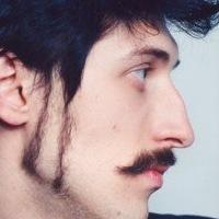 Ринопластика носа в киеве. цены