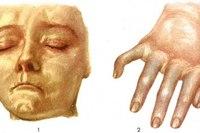Лица и изменение кистей рук худые и