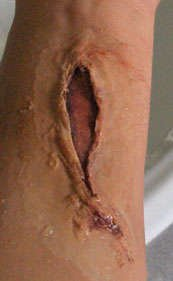 Покрасьте рану
