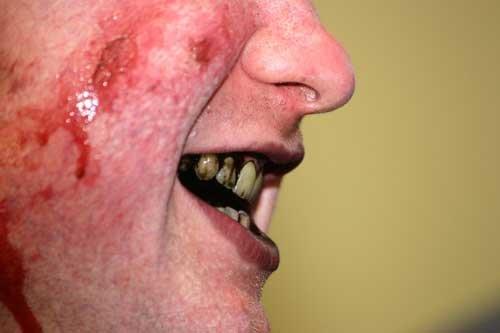 гнилые зубы запах изо рта