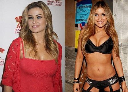 примеры похудения до и после фото
