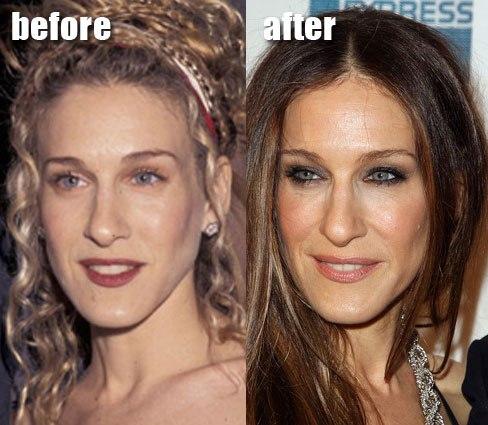 фото ботокс губ до и после