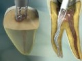 ReDent Nova- root canal treatment (SAF innovative device)produced by Virtual Point