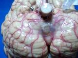 Neuroanatomia; Disecciòn Cerebro: Cisterna magna, Arteria Cerebelosa Posteroinferior (PICA)