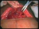 Extra peritoneal caesarean section in prev 2 C section drvahabkp