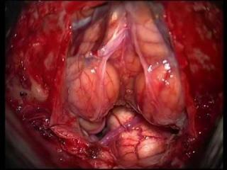 Удаление опухоли IV желудочка. Для не посвященных! Это операция на головном мозге.