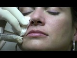 Juvederm Ultra Injection to NasoLabial Folds (laugh lines) by Reston Virginia Cosmetic Surgeon