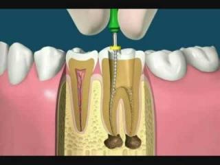 Qué es una endodoncia o root canal y como se realiza?