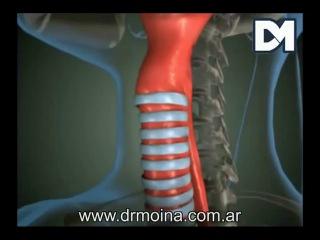 Анатомия голосовых связок