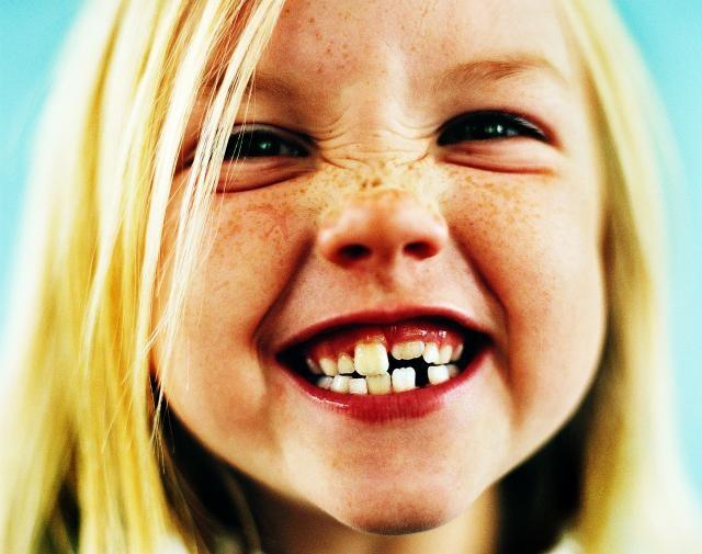 Стоматология Детская фото