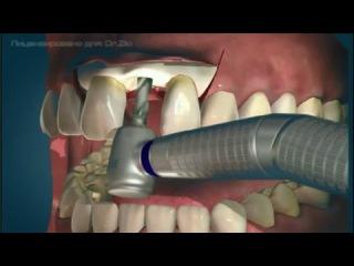 Операция имплантации зубов (ролик-схема)