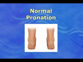 Foot Pain Due to Flat Feet and Over-Pronation- An Easy Solution