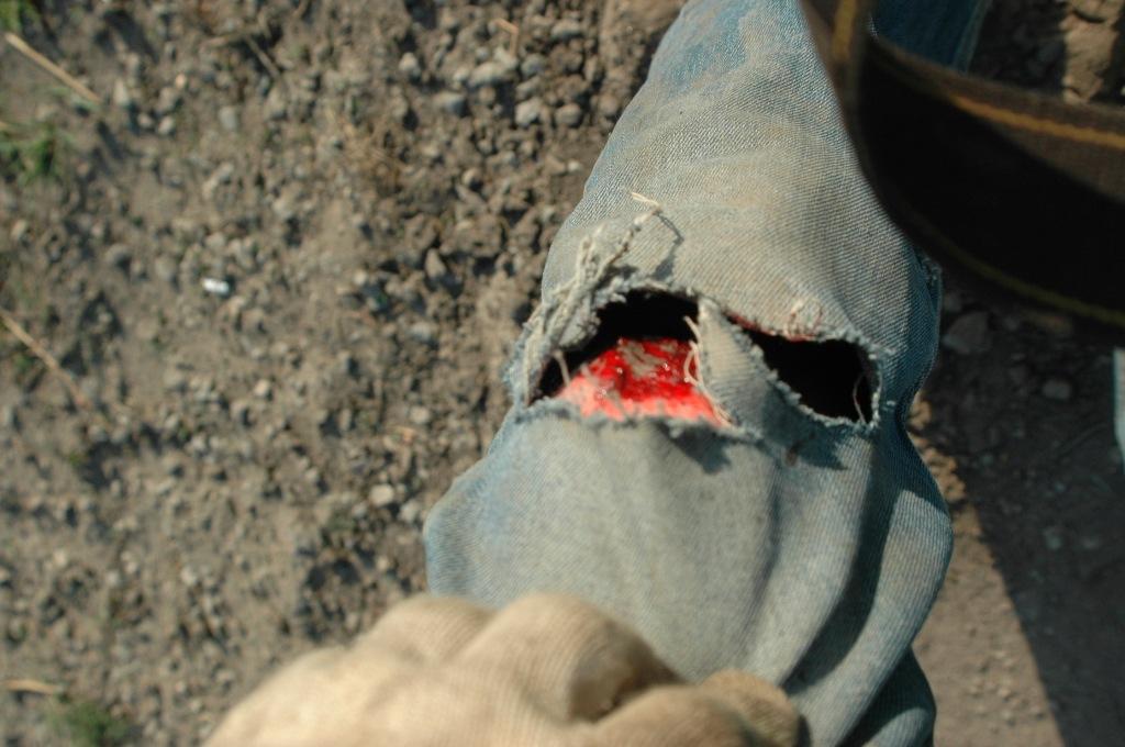 Ушибленная рана коленного сустава боль в плечевом суставе пожелые
