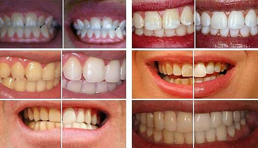 Липецк стоматология отбеливание