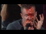 The Dillinger Escape Plan - When I Lost My Bet (live)