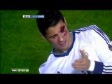 Криштиану Роналду едва не лишился зрения после удара в лицо