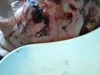 Бабку едят черви видео