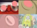 OVA| Волшебница-медсестра Комуги-тян Зет  Nurse Witch Komugi-chan Magikarte Z - 1 серия (Субтитры)