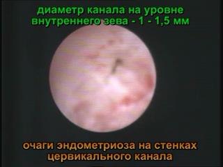 Эндометриоз шейки матки. Амбулаторная цервикоскопия.