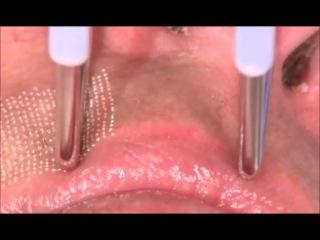 Dot-therapy - фракционное лазерное омоложение