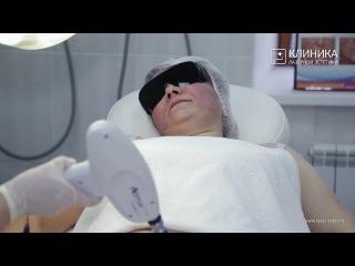 Как проводится лазерная шлифовка шрамов
