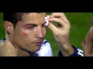 Криштиану Роналду разбтли брофь и через 15 мин он забил гол
