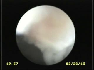 отоскопия хронический гнойный отит, неоплазия, гиперплазия кожи слухового прохода