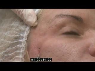 Векторный лифтинг лица канюльной техникой.Обучение и Косметология в Дагестане.