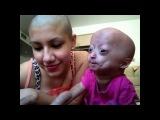 Мама этой маленькой девочки состригла свои шикарные волосы ради дочери, мама сказала что они теперь близнецы. Вот это мама!..