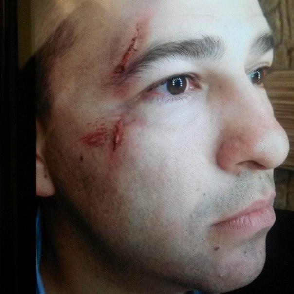 """Звезда """"Однажды под Полтавой"""" Виктор Гевко опубликовал селфи с побоями на лице!"""