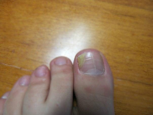 Если ногти на большом пальце отходят