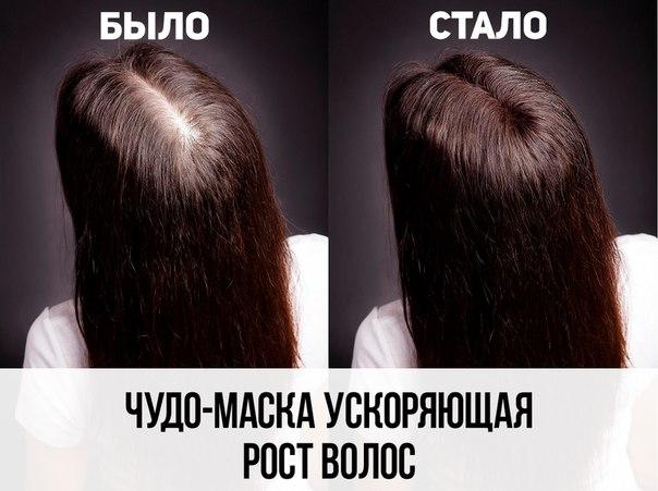 Маски для волос ускоряющие рост волос в