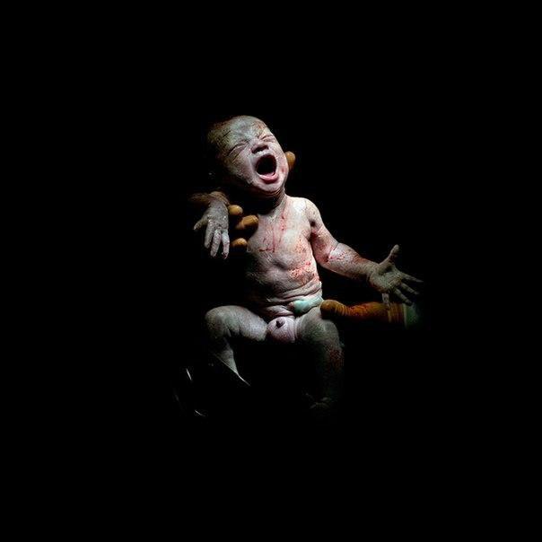 Как выглядят новорожденные в первые минуты жизни Французский фотограф Кристиан Бертхлот (Christian Berthelot) снял захватывающую и немного шокирующую серию фотографий первых секунд жизни детей, рожденных при помощи Кесарева сечения. Серия так и называется Caesar (Цезарь).
