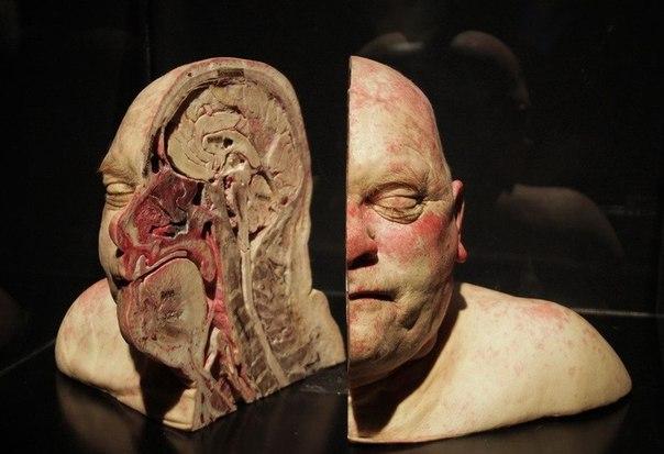 Голова человека в разрезе.