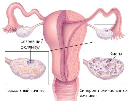 поликистоз яичников лечение спб форум
