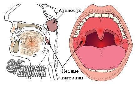 Лечение аденоидов без операции.