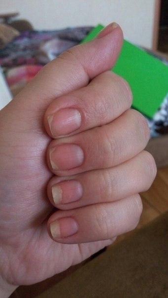 Нарощенные ногти болит палец на