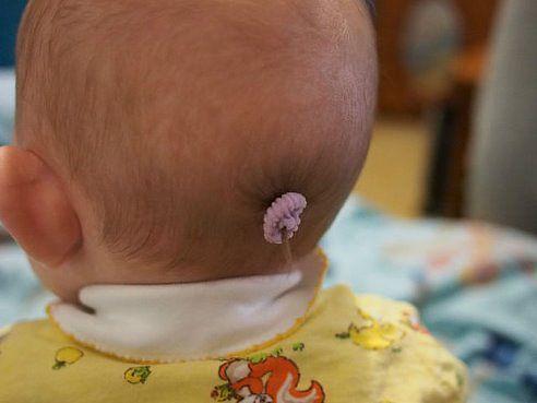 частные объявления у ребенка маленькая голова и не растут во Вилке Веста, Книга: