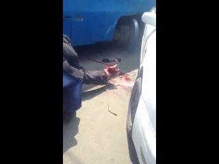 +18 Трамвай с рельс сошел и отрубил человеку ногу, слабо нервным не смотреть...
