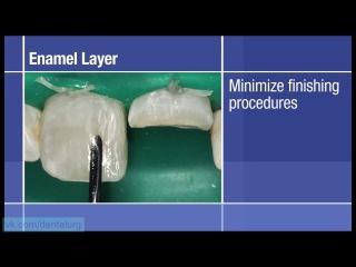 1. Реставрация передних зубов