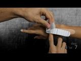 Кинезио тейп при выбитом пальце кисти