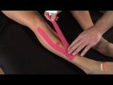 Тейпирование передней большеберцовой мышцы
