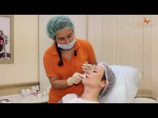 Увеличение губ гиалуроновой кислотой без операции. Коррекция формы губ. Клиника БиКод Москва.