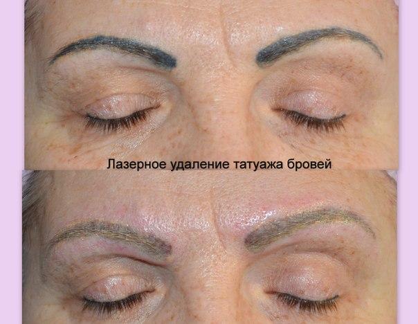 Перманентный макияж губ естественный фото