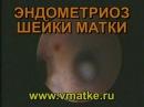 Эндометриоз шейки матки Эндометриоидные гетеротопии