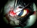 Correção de Laceração traumática córneo palpebral em felino