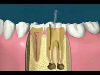 Root Canal Treatment Procedure low