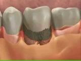 dental center haifa стоматологический центер хайфа