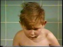 Пищеводно-трахеальный свищ. Академики Б.В.Петровский, М.И.Перельман оперируют,1973