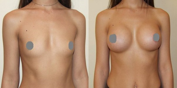 Как увеличь грудь на 1 размер подростку за неделю